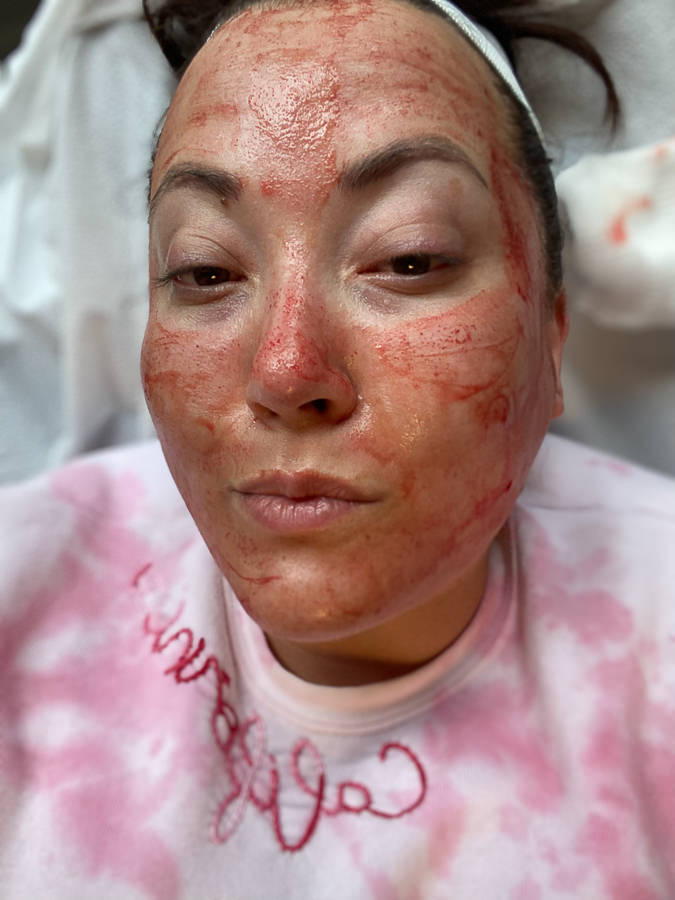 PRP Facial by popular Monterey beauty blog, Haute Beauty Guide: image of a woman with a PRP facial.